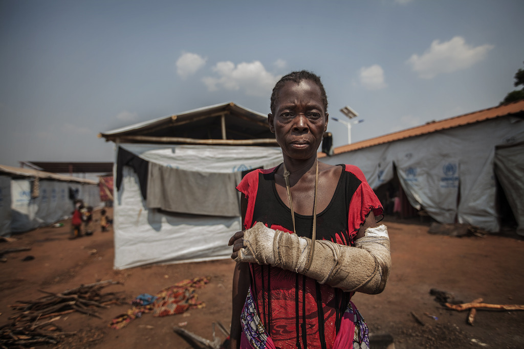 A refugee in the Cacanda camp shows the traumatic injury caused during the conflict in the Democratic Republic of Congo (DRC). MSF provides mental health services for refugees in need, many of whom are direct witnesses or victims of the violence. Photographer: Bruno Fonseca