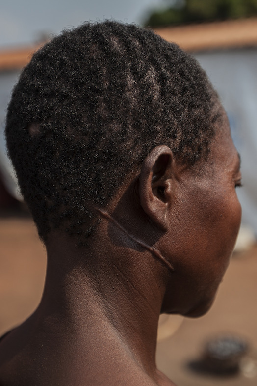 A refugee in the Cacanda camp shows the traumatic injury caused during the conflict in the Democratic Republic of Congo (DRC). Photographer: Bruno Fonseca