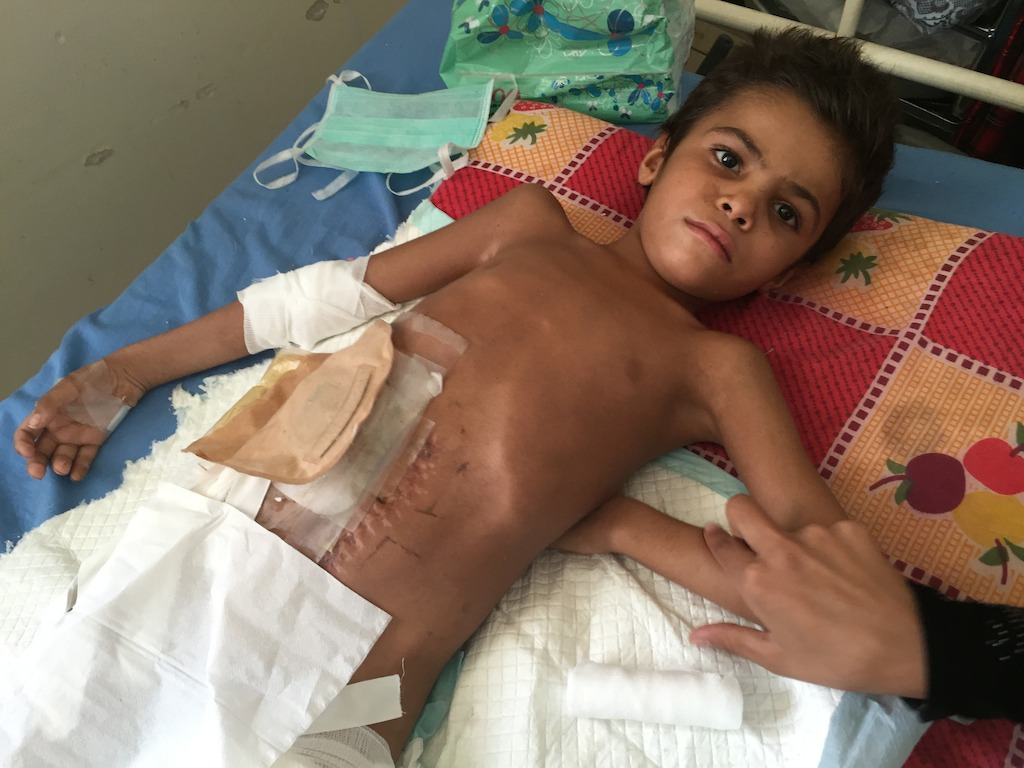 8-year-old Faris, badly injured when a missile hit his house