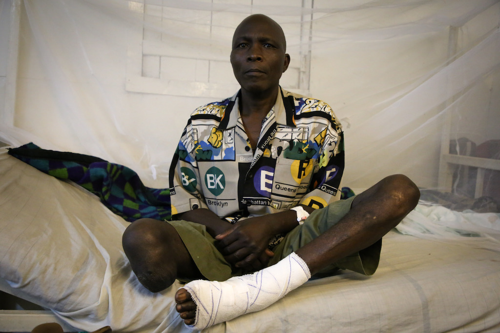 Jean, 54 years old, gun wounded patient in the Masisi hospital, North Kivu. In 2016, at Masisi Hospital, the MSF surgical team has offered 3804 surgeries. Photographer: Sara Creta