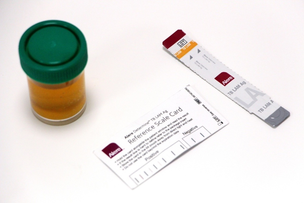 TB LAM test. Photographer: MSF