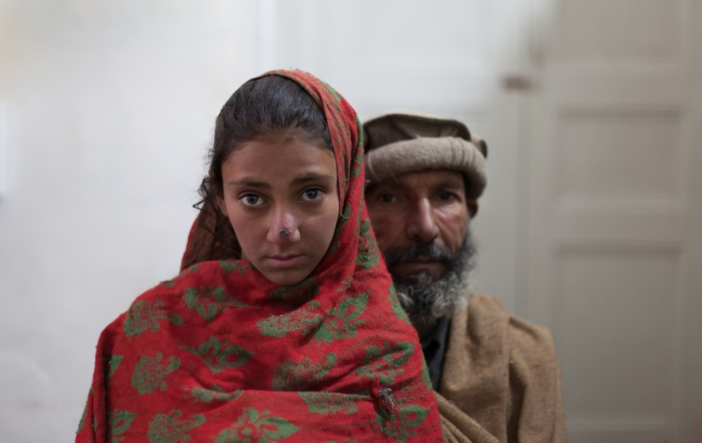 System identifier<br/>: MSF147866<br/>Title<br/>: Pakistan Behind The Headlines<br/>Photographer / cameraman<br/>: Sa&#039;adia Khan<br/>Countries:<br/>Pakistan<br/>Description<br/>: Mohammad Akhtar 40 years old with his daughter Rubbina 10. From Mamozai - took<br/>them 6 hours to get to the hospital by foot. His wife has a kidney problem. 7 children. Rubbina has<br/>Leishmaniasis - skin condition